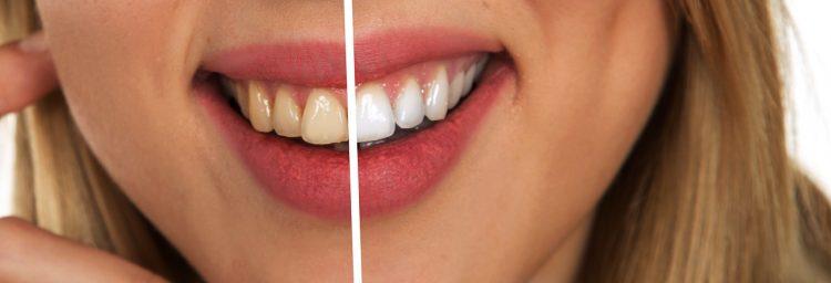 Professionelle Zahnreinigung - was wird gemacht?